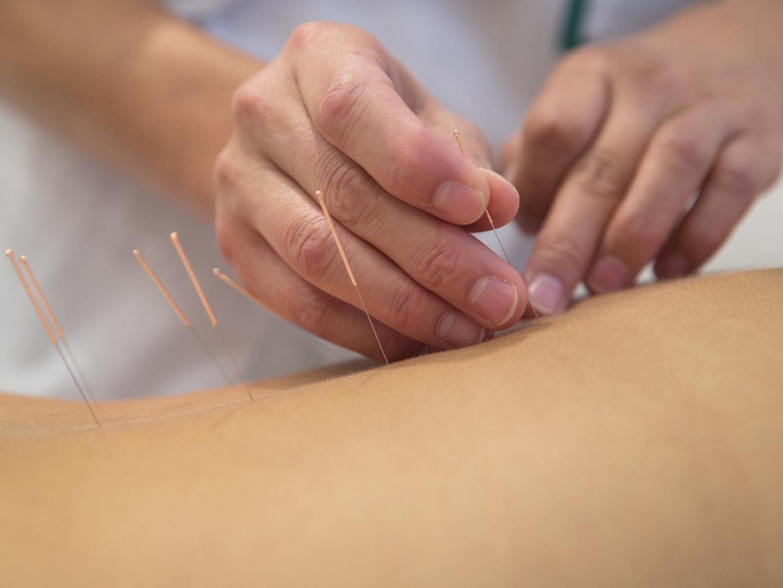 درد سیاتیک چیست و چگونه درمان میشود؟