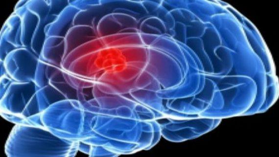 درمان تومورهای مغزی مشهد