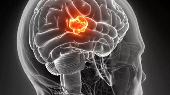 تومور مغزی چگونه جراحی می شود ؟