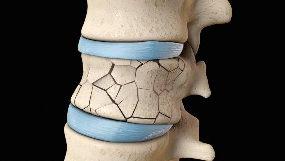 درمان شکستگی های فشاری ستون فقرات با جراحی کیفوپلاستی