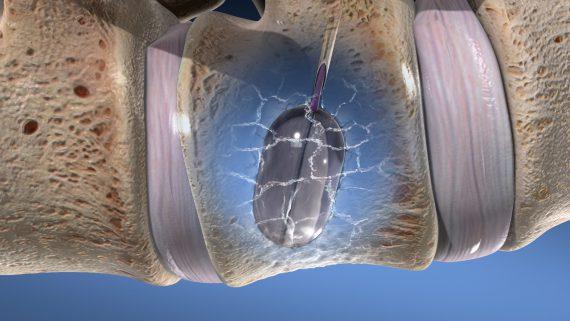 عوارض و ریسک فاکتورهای درمان شکستگی فشاری ستون فقرات